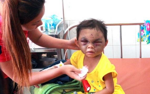 一名 4 歲的女童長期遭親母及繼父虐打,臉部遭重擊腫脹。