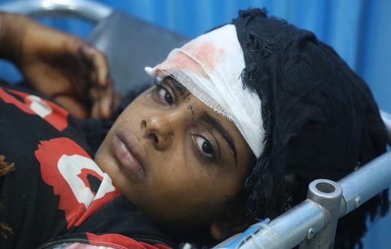 在也門荷台達的一所醫院,一名受傷的女孩正在接受治療。她和弟弟、叔叔一起受傷,當時一家人正試圖搬到遠離戰鬥的地區。(圖源:聯合國)