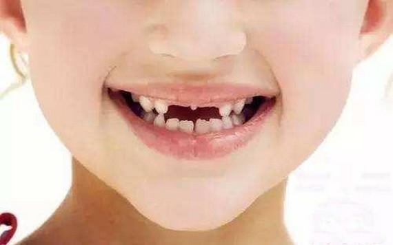 兒童牙頜畸形要早期矯治嗎?