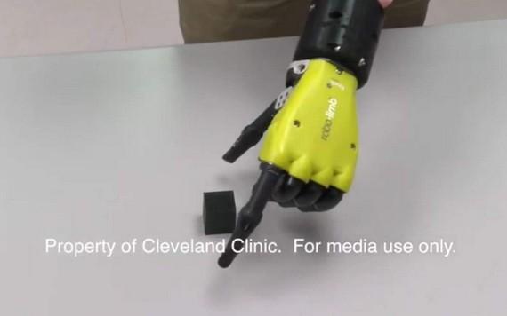新研發仿生手臂可與佩戴者的大腦進行交流