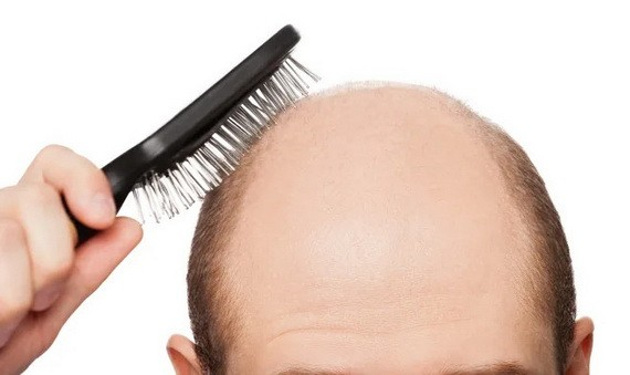 脫髮八問:生薑洗髮水能減少脫髮嗎?