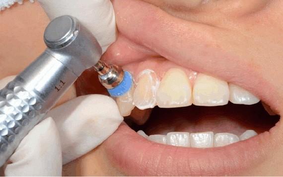 洗牙會讓牙縫變大?
