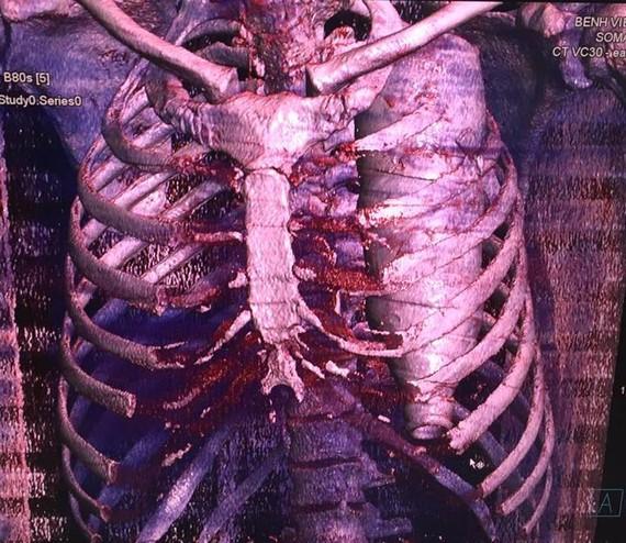 Chụp CT scaner, các bác sĩ phát hiện vỏ chai nước khoáng trong lồng ngực bệnh nhân