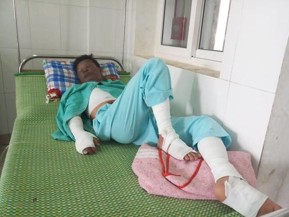 Anh Y. đang được điều trị tại Bệnh viện đa khoa tỉnh Quảng Trị