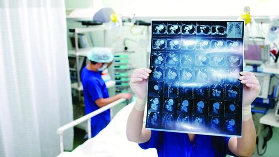 Vitamin B1 giúp phục hồi não