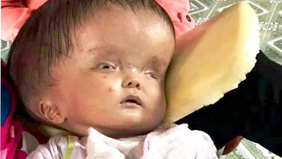 Góp sức cứu cháu bé  5 tháng tuổi bị não úng thủy