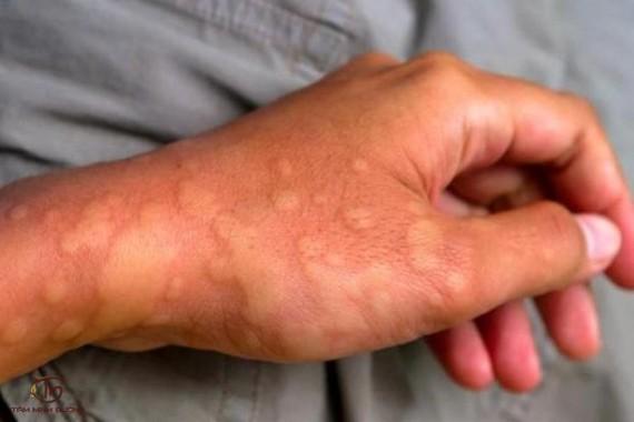 Tư vấn các bệnh về da liễu cho chiến sĩ hải quân
