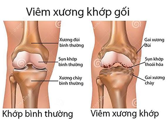 Từ biệt đau đớn do bệnh xương khớp