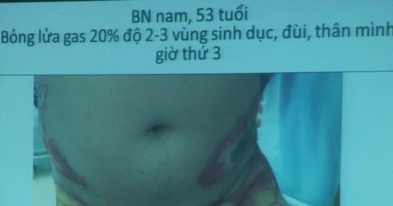 Bệnh nhân bị bỏng cấp độ 3, sâu, tổn thương, hoại tử da, nặng nhất là ở bộ phận sinh dục và hậu môn