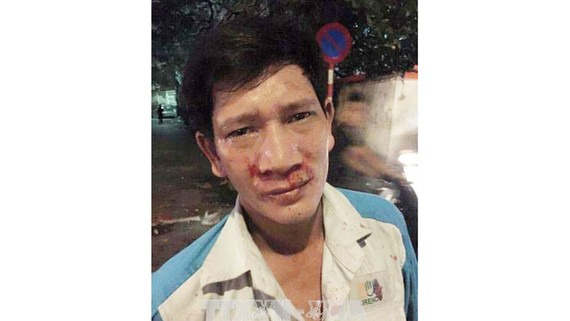 Anh Nguyễn Văn Sinh khuôn mặt bê bết máu do bị hành hung. Ảnh TTXVN