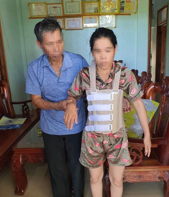 Chị Anh bị đánh chấn thương 5 đốt sống, sau khi ra viện phải ở nhà nhà bố mẹ đẻ, mọi sinh hoạt phải có người dìu