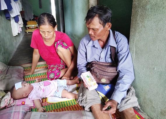 Bé Phùng Thị Kim Ngân bị bệnh tim bẩm sinh