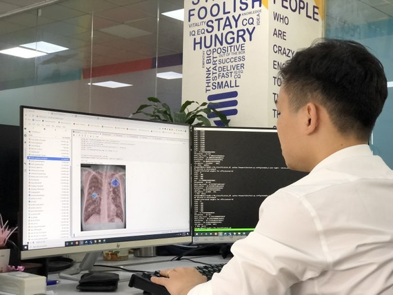 Chuyên gia AI của VinBrain đang sử dụng NVIDIA DGX A100 để đào tạo mô hình AI chẩn đoán bệnh lao