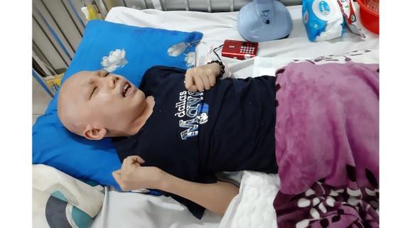 Thương xót bé trai bị ung thư não