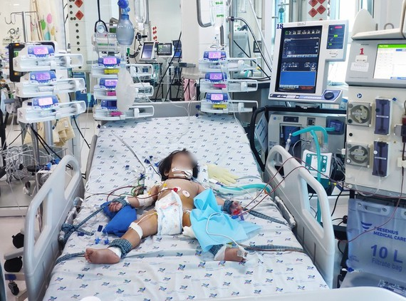 Bé gái trụy tim, nguy kịch do mắc tay chân miệng. Ảnh: Bệnh viện cung cấp