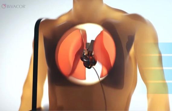 Tim nhân tạo mở ra cơ hội mới cho những bệnh nhân chờ cấy ghép tim