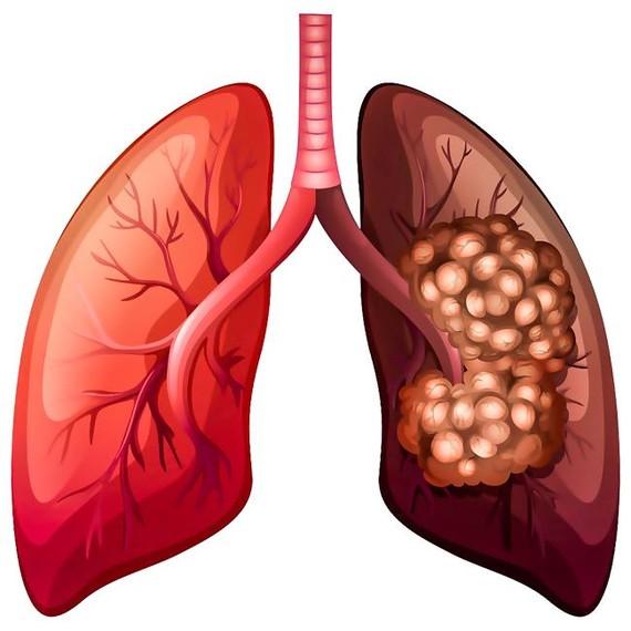 Ung thư phổi-Nguy cơ mắc bệnh cao