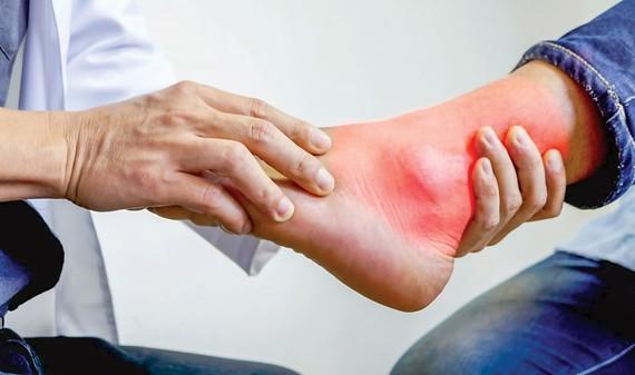 Không chủ quan  điều trị bệnh gout