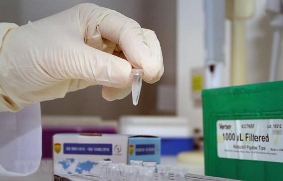 Test xác định virus SARS-CoV-2. (Ảnh: Dương Giang/TTXVN)
