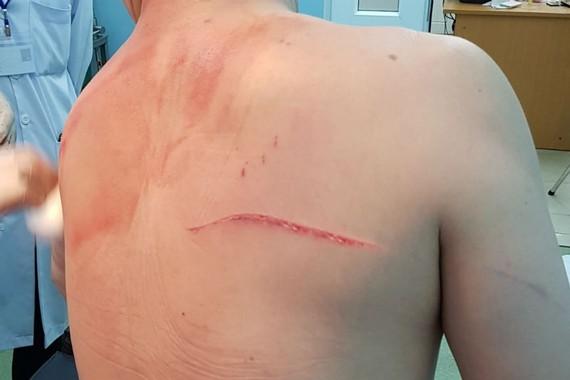 Vết thương trên người bác sĩ Chiêm Quốc Thái. Ảnh: P.A.