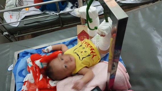 Cháu bé thương tích 37% đang được điều trị tại bệnh viện. Ảnh: C.T