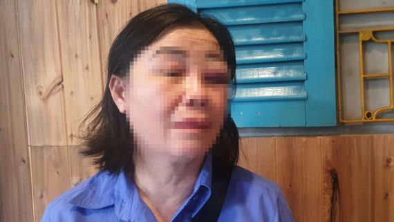 Nữ tiếp viên bị hành hung
