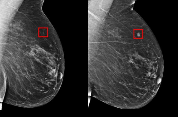 麻省理工(MIT)電腦科學與 AI 實驗室(MIT CSAIL)開發出一款風險預測 AI 模型,可以識別乳房組織的細微變化,並確定在未來5年發展為乳腺癌的可能性。