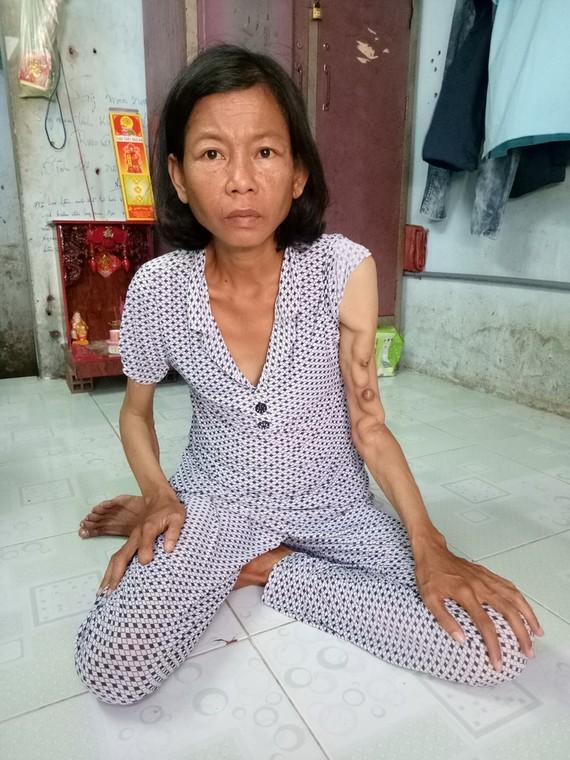 洗腎使陳香的手臂浮腫,全身消瘦。