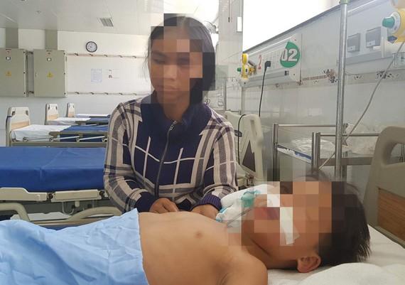Một trong 3 bệnh nhi đang được điều trị tại Bệnh viện Nhi đồng Cần Thơ