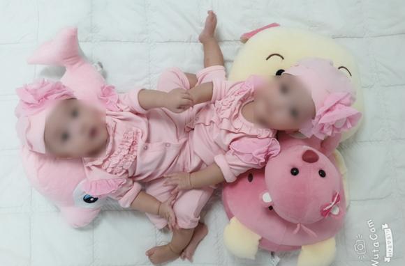 2 bé gái song sinh dính liền vùng bụng chậu