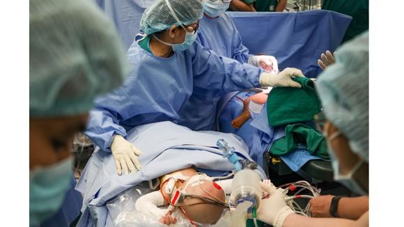 Khoảnh khắc 2 bé được tách rời tại Bệnh viện Nhi đồng Thành phố. Ảnh: HOÀNG HÙNG