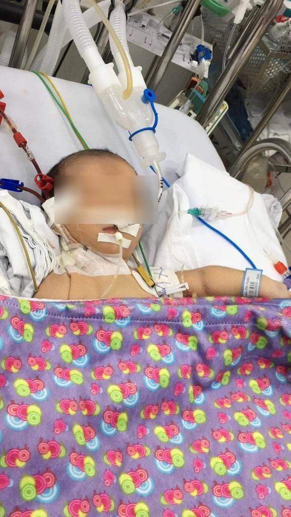 Sau sinh 3 ngày, bé sơ sinh đột ngột bỏ bú, co giật, hôn mê ảnh 1
