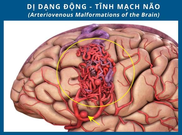 Nhập viện vì đau đầu, buồn nôn, không ngờ bị đột quỵ do xuất huyết não ảnh 1