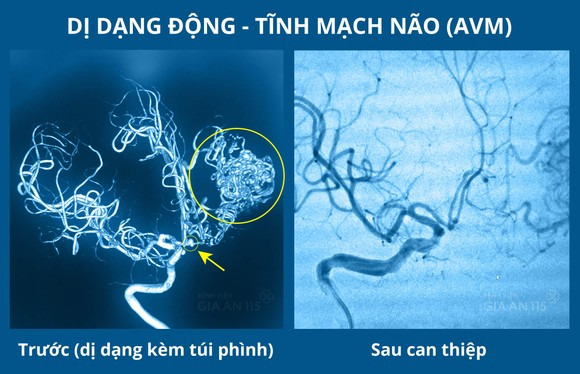 Hình ảnh chụp CT mạch máu não của bệnh nhân trước và sau khi can thiệp