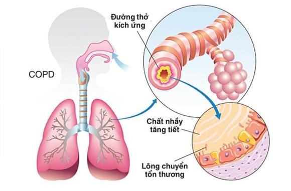 Bệnh phổi tắc nghẽn mãn tính - Sát thủ thầm lặng
