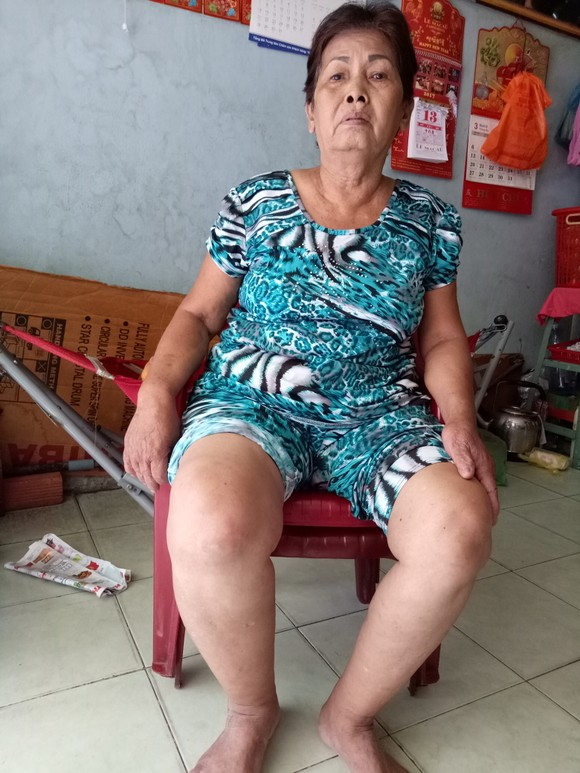 陳阿嬌的腰骨疼痛,腳部浮腫。