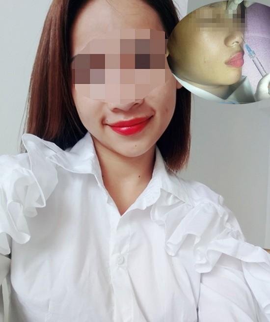 少女注射填充劑隆鼻後,導致單眼失明。(圖源:當事人提供)