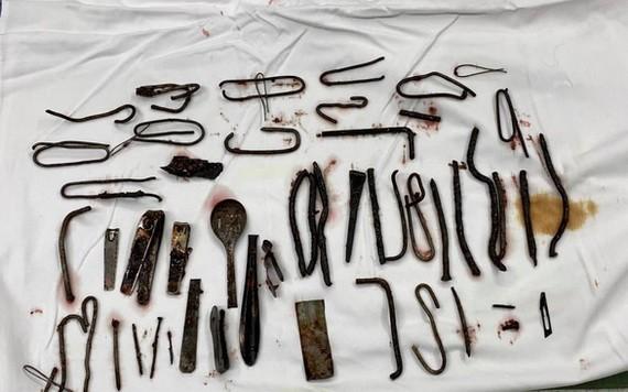 經手術從患者胃部取出體外的大量金屬異物。(圖源:院方提供)