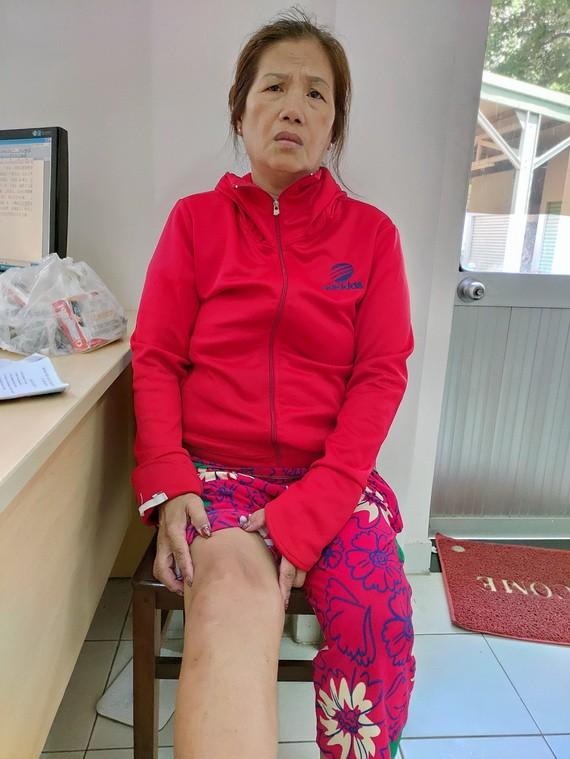 李翠蓮的右腳膝蓋浮腫又疼痛。