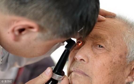 老年人還有哪些常見眼病?