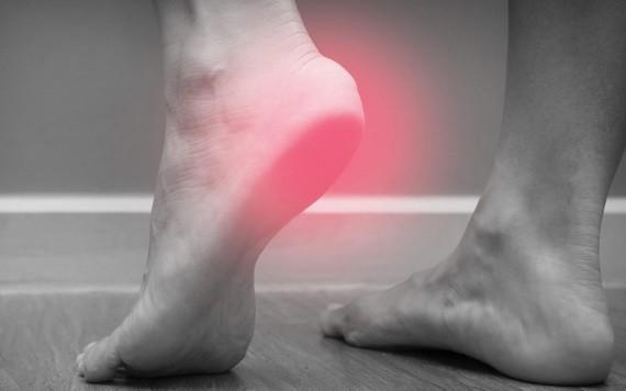腳跟痛不一定是足底筋膜炎!