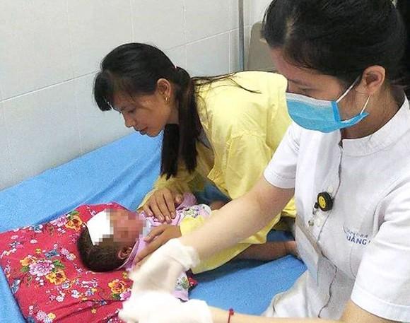 Đau xót cảnh em bé chưa tròn 1 tháng tuổi viêm loét toàn thân vì tắm lá ảnh 1