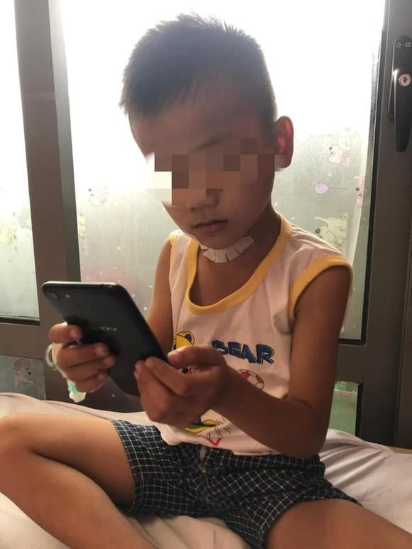 Bé trai 7 tuổi bị kéo đâm xuyên cổ ảnh 2
