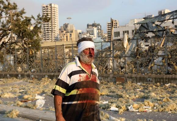 Nổ ở Beirut, hàng ngàn người thương vong ảnh 22