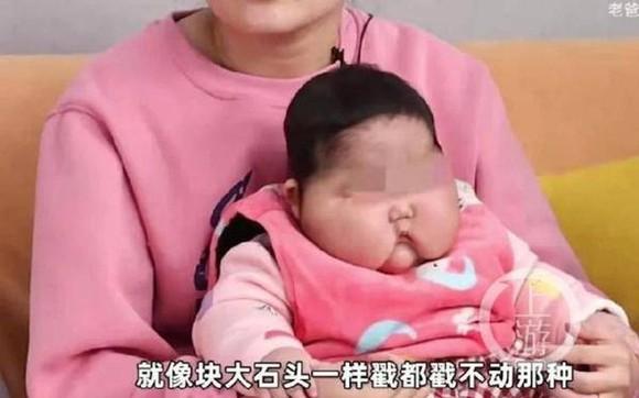 """Bé gái bị tăng cân bất thường sau khi sử dụng kem và được truyền thông Trung Quốc gọi là """"trẻ đầu to"""". Ảnh: shangyounews."""
