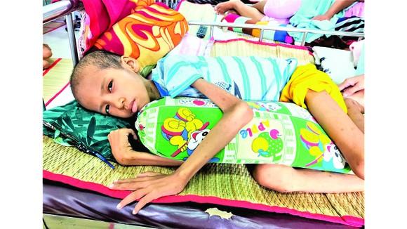 Con nhà nghèo mắc bệnh nan y