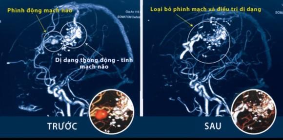 Ảnh chụp CT trước và sau khi phẫu thuật
