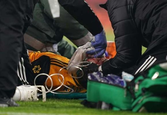 Raul Jimenez bị nứt sọ sau pha cụng đầu kinh hoàng với David Luiz ảnh 1