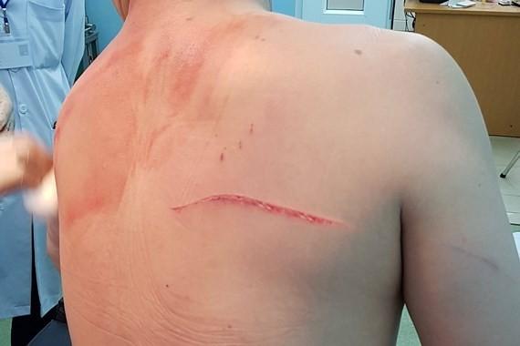 Vụ bác sĩ Chiêm Quốc Thái bị chém ở phố đi bộ: Bắt thêm 1 nghi can ảnh 2