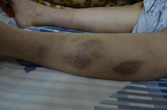 Nhóm côn đồ đập phá nhà dân đánh 2 người phụ nữ nhập viện cấp cứu ảnh 2